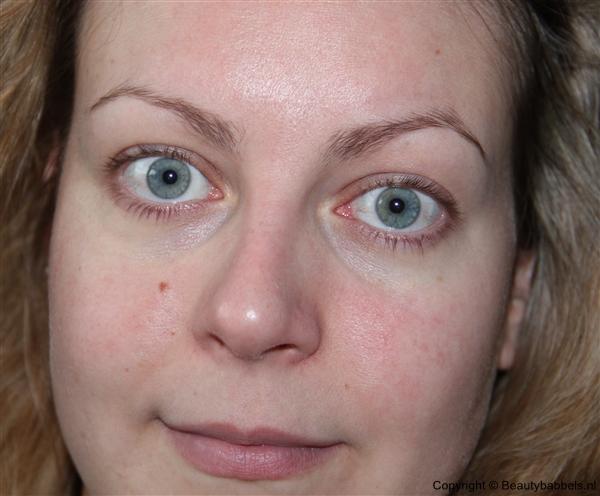 allebei de ogen
