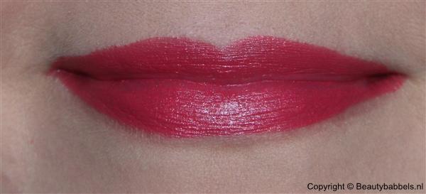 lip zonder flits